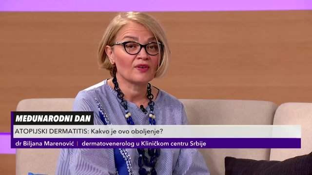 DR MARENOVIĆ O ATOPIJSKOM DERMATITISU: Među obolelima je sve više dece, a jedna stvar je KLJUČNA za njegovo dobijanje