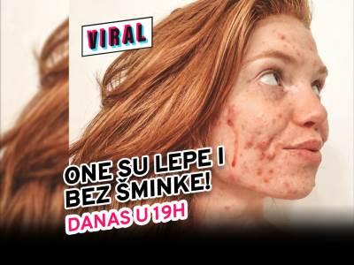 Skin positivity: Savršena koža ne postoji - svako je lep na svoj način!